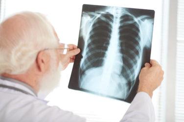 L'OMS fait le point sur la tuberculose